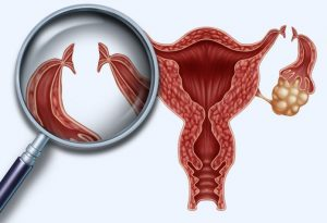 tubal ligation reversal cost depend on complexity of the surgery